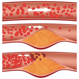 cholesterol - upchavanie ciev
